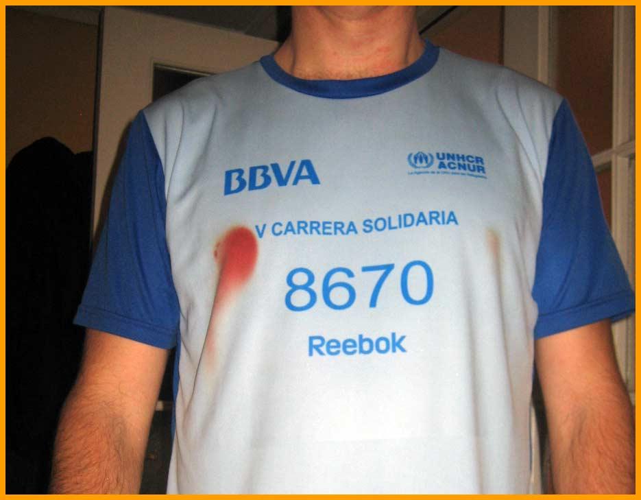 Rozaduras o roces al correr | Rozaduras en el talon | voyacorrer.com