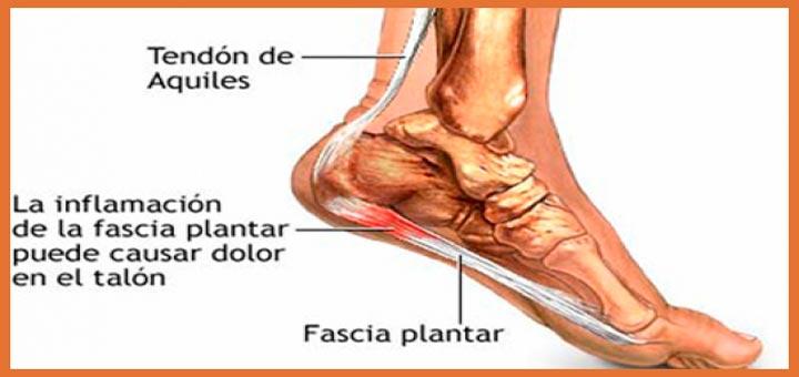 fascitis plantar en corredores ejercicios y tratamientos - JARRAS CORTAS - voyacorrercom