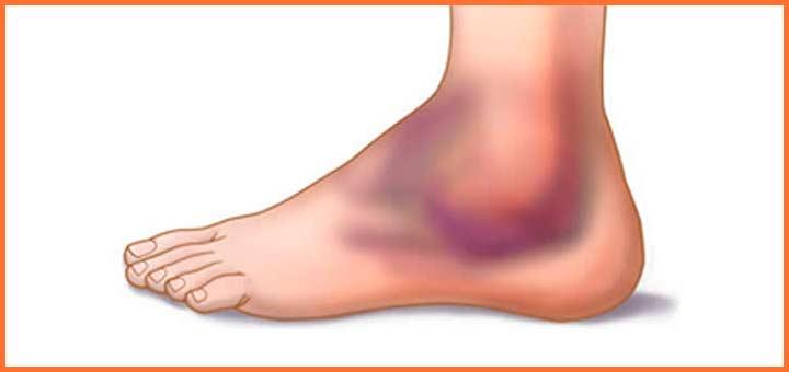 Esguince de tobillo - Como curar un esguince de tobillo | voyacorrer.com