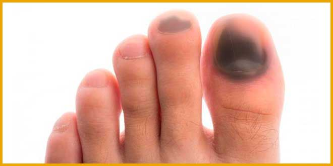 Como tratar uñas negras al correr - voyacorrer.com