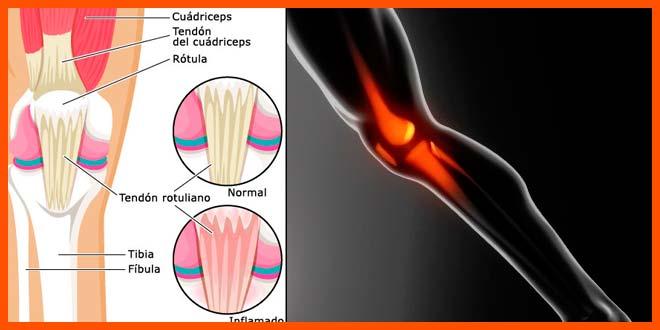 Tendinitis rotuliana en corredores y ciclistas. Lesión común. - voyacorrer.com