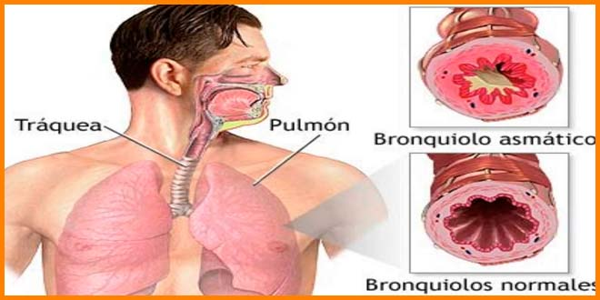 correr con asma | inhalador para antes de correr | voyacorrer.com