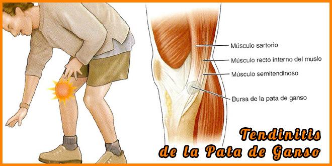 Tendinitis pata de ganso sintomas   voyacorrer.com