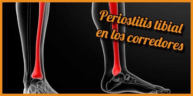 periostitis tibial sintomas y tratamiento | voyacorrer.com