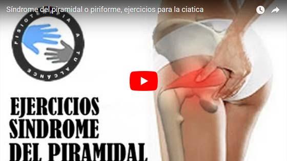 sindrome del piramidal ejercicios en voyacorrer.com